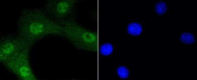 AKT1 (p Ser473) Rabbit anti-Human, Mouse, Clone: SY28-05, Novus Biologicals